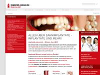 Implantat-Wissen: Patientenratgeber zum Thema Zahnimplantate